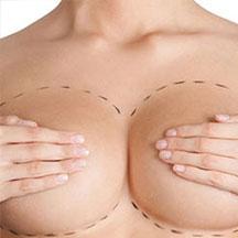 lipofilling seins Turquie