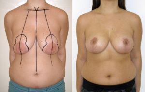 Reduction seins avant apres