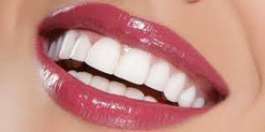 smile infinity turquie