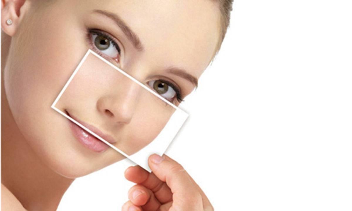 se refaire le nez sans chirurgie