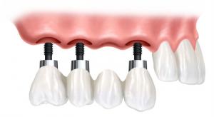 prix implant dentaire Turquie