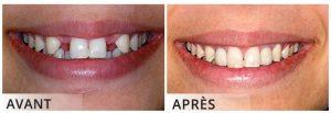 resultat implant dentaire Turquie