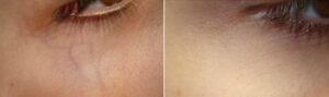 traitement veines sous les yeux