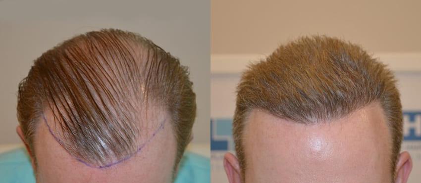 greffe cheveux turquie