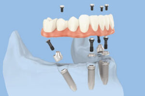 implant dentaire all on 4