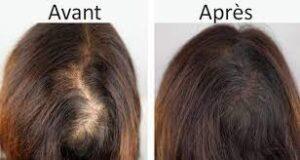 botox cheveux