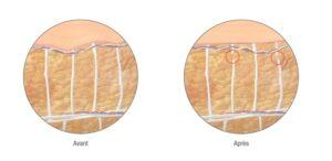 cellfina turquie anti cellulite