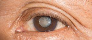operation cataracte turquie