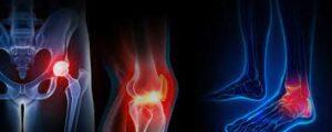Chirurgie orthopédique en Turquie